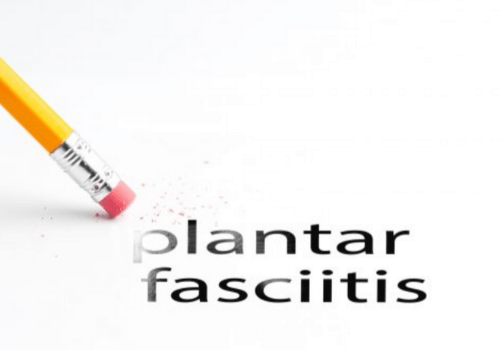 Read more about the article Plantarni fasciitis